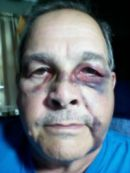 David_Collett_face_injury_FORWEB